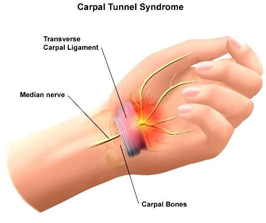 Carpal-Tunnel-Syndrome1
